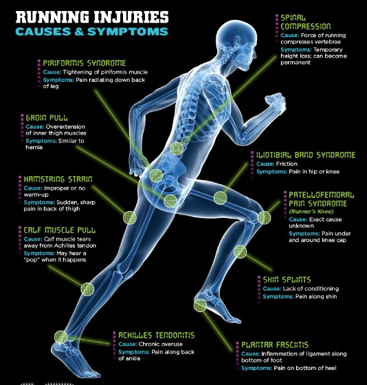 Lower Leg Pain Running Diagram